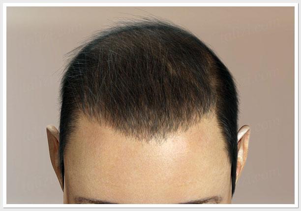 Hair Transplantation Stages & Grafts - Dr  Kalia's Novena Clinic